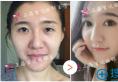 上海修复医院哪家最好 百达丽(伯思立)双眼皮修复案例告诉你
