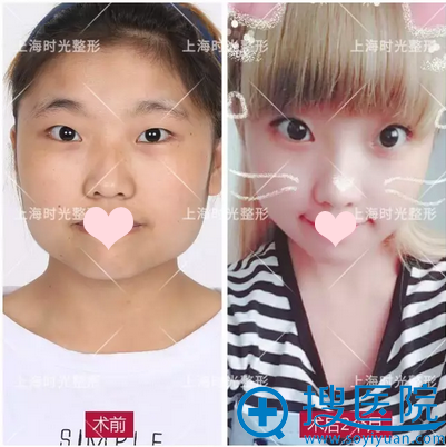 上海时光何晋龙下颌角前后对比效果