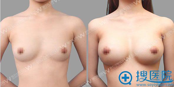 原辰整形外科假体隆胸对比效果