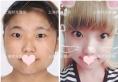 上海时光何晋龙磨骨怎么样 下颌角手术让我从四方脸变小脸萌妹