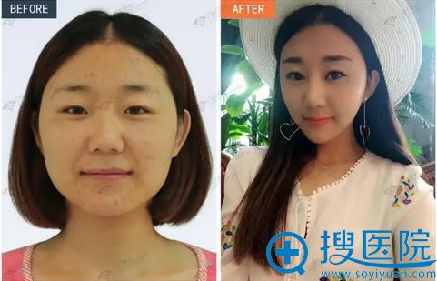 沈阳杏林下颌角术后两年效果