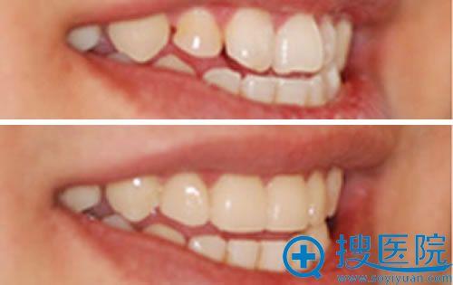 北京康贝佳口腔门诊部矫正牙齿案例