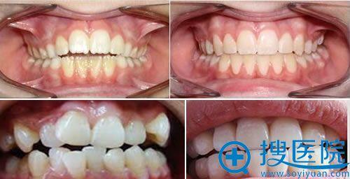 北京大学口腔医院牙齿矫正案例