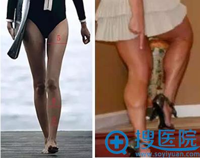 怎么去除小腿肌肉拥有大长腿