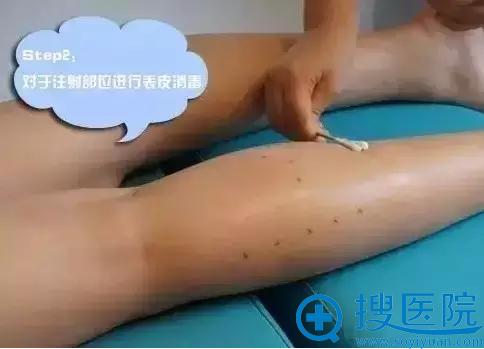 重庆军美瘦腿针注射前表皮消毒