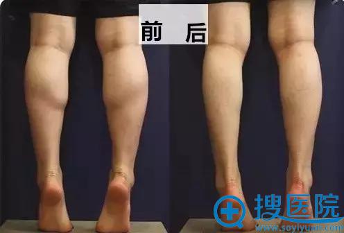 重庆军美瘦腿针注射前后对比照