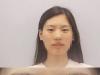 南京美贝尔眼综合案例告诉你割了双眼皮,眼睛还是不漂亮的原因