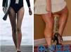 怎么去除小腿肌肉?重庆军美瘦腿针案例给你模特般的大长腿