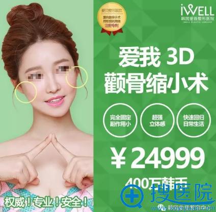 韩国iwell爱我整形医院3D颧骨缩小术24999元人民币
