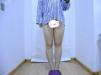 福州名韩陈声瑾水动力吸脂瘦大腿案例 拯救梨形身材