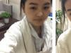 【真实分享】重庆星宸彭绍宗硅胶假体隆鼻+耳软骨鼻尖恢复日记