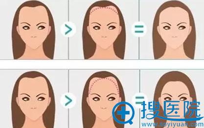 头发移植改善发际线示意图