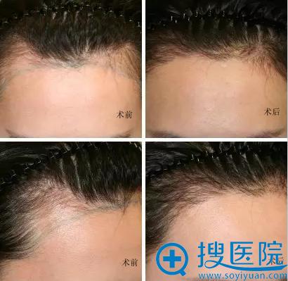 南京克拉美王莉M型发际线种植术后一周对比效果