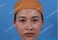 双眼皮割窄后闺蜜陪我找天津464刘旺做了双眼皮失败修复手术