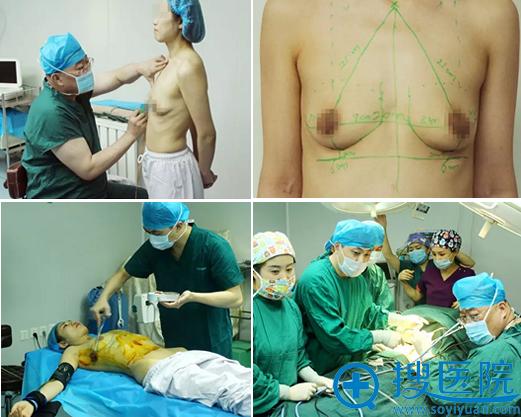 吉林长春铭医杨晓光傲诺拉假体隆胸手术中