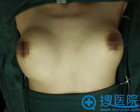 吉林铭医杨晓光傲诺拉假体隆胸术后即刻效果