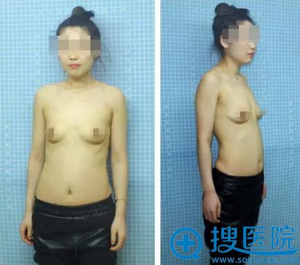 吉林长春铭医杨晓光傲诺拉假体隆胸术前照