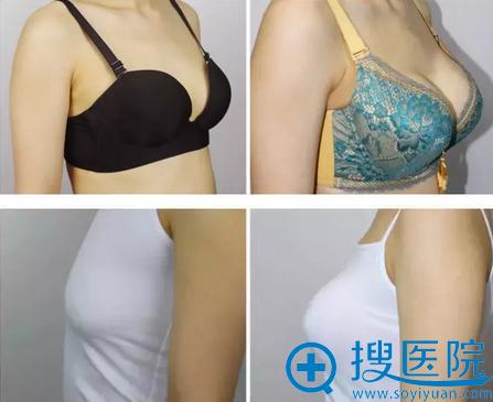 吉林长春铭医杨晓光傲诺拉假体隆胸术后对比照