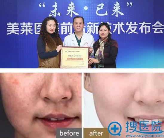 天津美莱整形医院皮秒祛斑案例