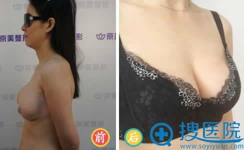 在京美做假体取出和自体脂肪隆胸效果