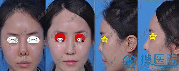 韩国鼻整形专家郑东学挛缩鼻术后2周前后对比图