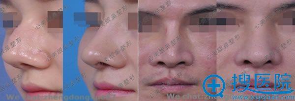 郑东学教授鼻修复案例图
