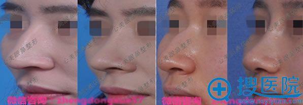 郑东学做过的鼻子驼峰鼻矫正