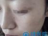 深圳联合丽格美肤医生王洪军告诉你美肤,皮秒和怎么选?