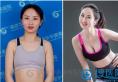 南京正规隆胸医院哪家好 南京华美假体隆胸让产后妈妈从A升到C
