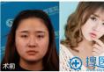 南京华美曹海峰鼻综合隆鼻案例效果怎么样 大家都说我美呆了