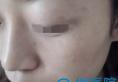 深圳联合丽格美肤专家王洪军告诉你美肤,皮秒和超声刀怎么选?