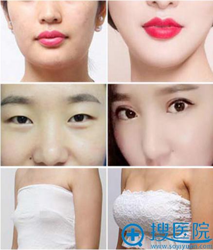 郑州华山整形医院双眼皮、隆胸案例