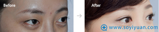 郑州美莱医疗美容医院双眼皮案例