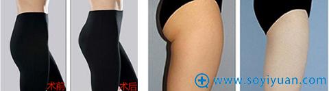 郑州美莱自体脂肪填充和吸脂案例