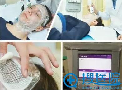 深圳联合丽格眼部热玛吉治疗过程