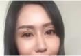 眼部松弛怎么改变 深圳联合丽格眼部热玛吉案例帮你轻松解决