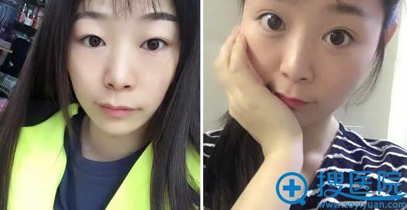 张广巍全切双眼皮手术效果