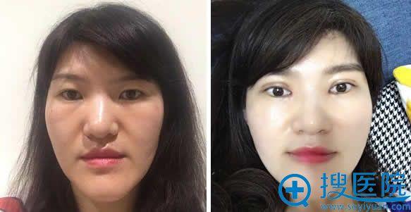 埋线双眼皮手术前后效果对比照片