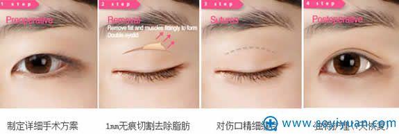 太原时光无痕双眼皮手术过程