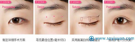 太原时光无痕埋线双眼皮手术过程