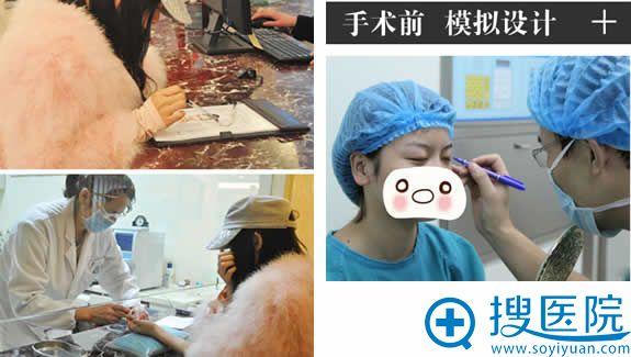 双眼皮手术前的准备工作