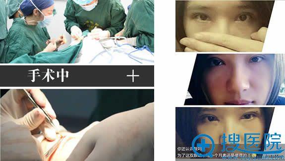 太原时光双眼皮手术过程图