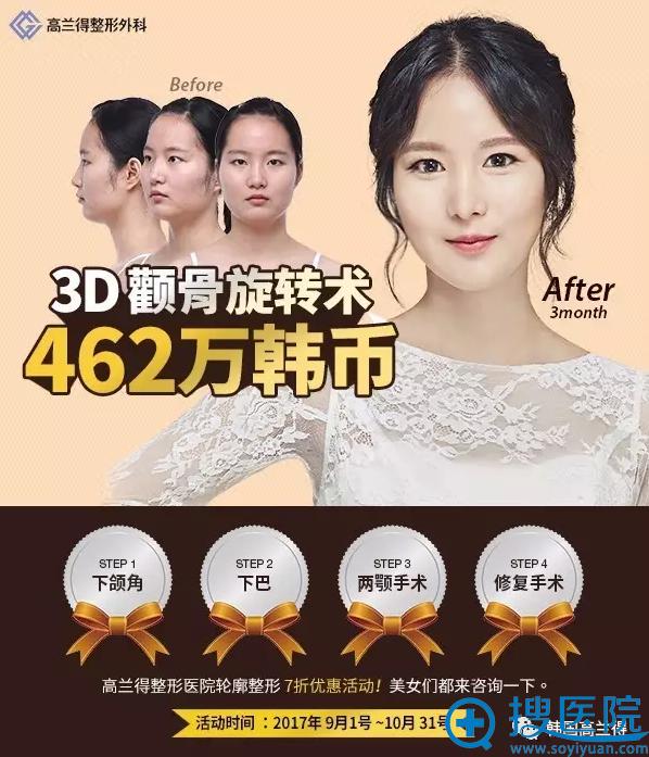 韩国高兰得整形医院轮廓整形7折优惠