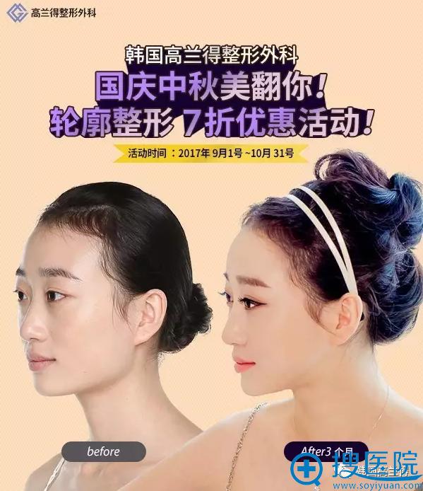韩国高兰得整形医院下颌角整形案例图