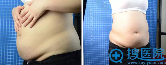 哈尔滨超龙水动力腰腹吸脂案例术后效果对比照片大分享