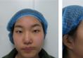 郑州丽天整形罗明生全切双眼皮案例恢复过程图片大分享