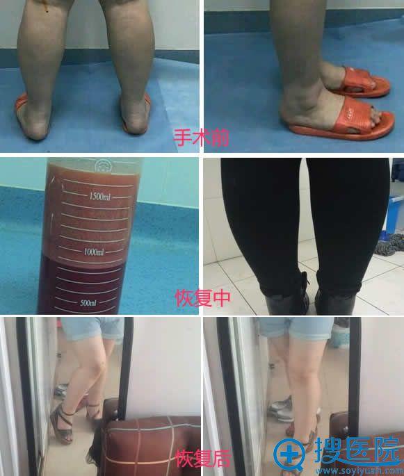 北京吸脂医生车景龙小腿吸脂案例