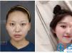 上海首尔丽格朴相根院长动态双眼皮+开内眼角案例效果图分享