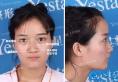 合肥艺星孙洋做韩国bsk宫廷隆鼻过程详解及案例效果图片分享