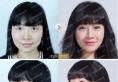 重庆美仑美奂做的自体脂肪填充全脸+双眼皮案例过程效果图分享